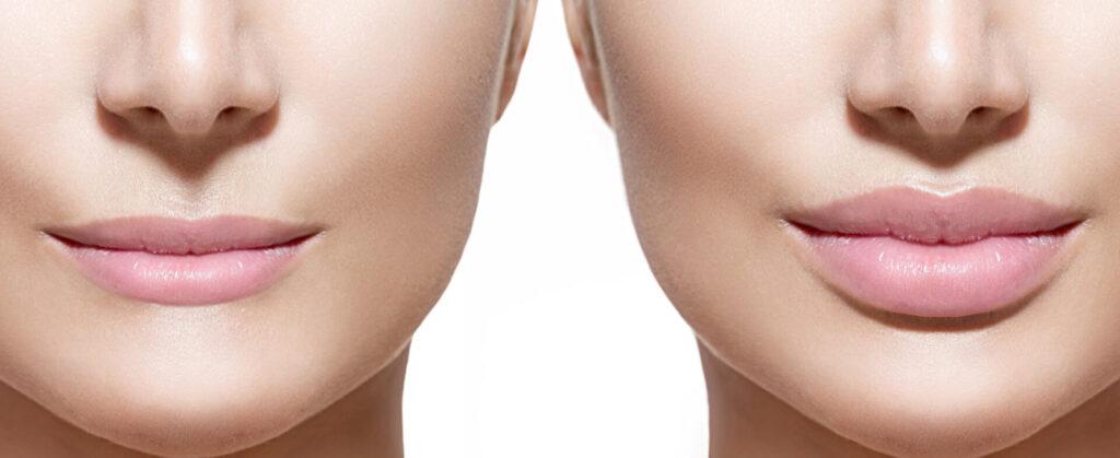Подтяжка нижней части лица