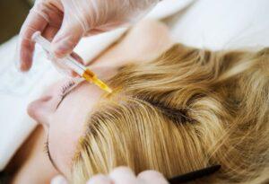 Мезотерапия для волос в Москве