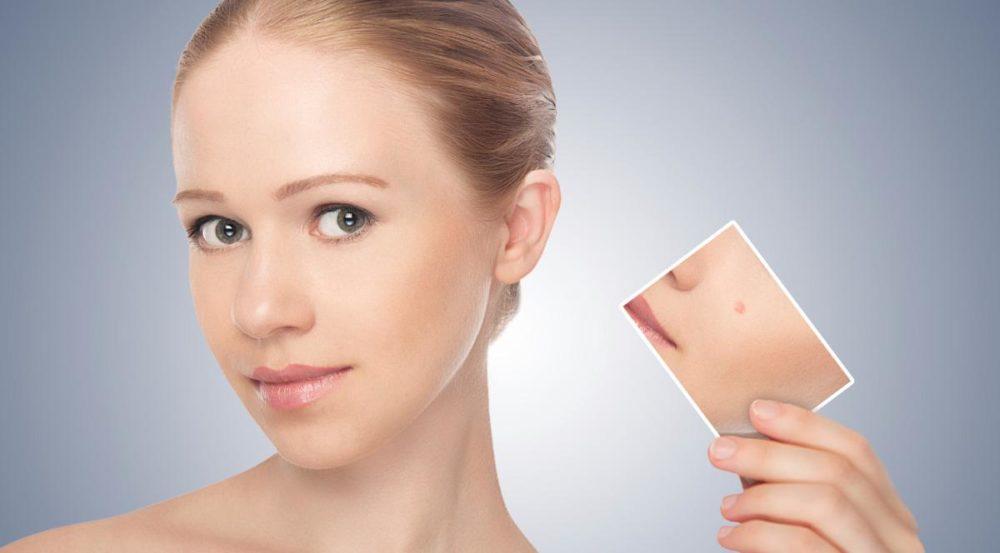 Удаление новообразований кожи в Москве