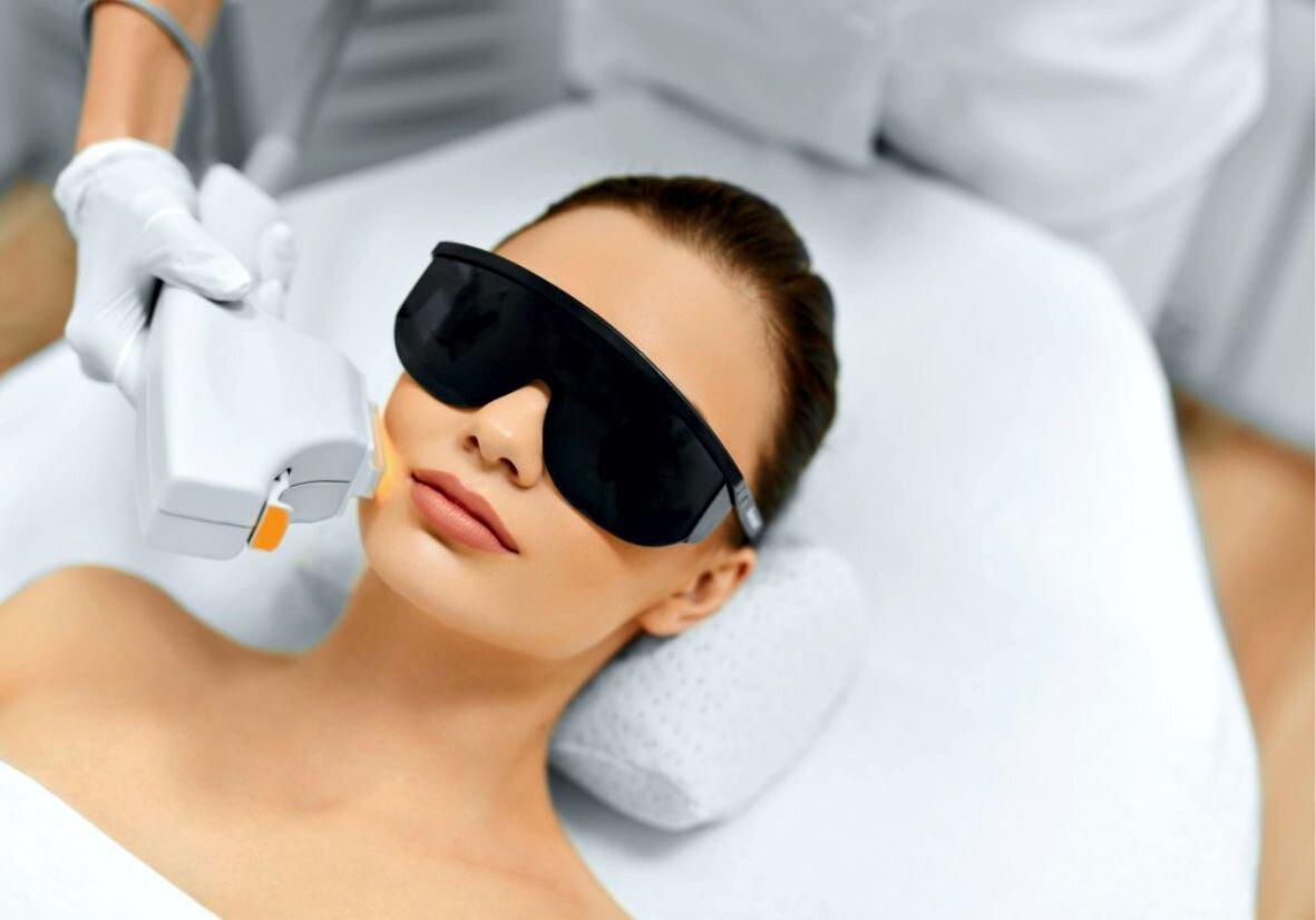 Лазерная эпиляция лица для женщин: цена в Москве