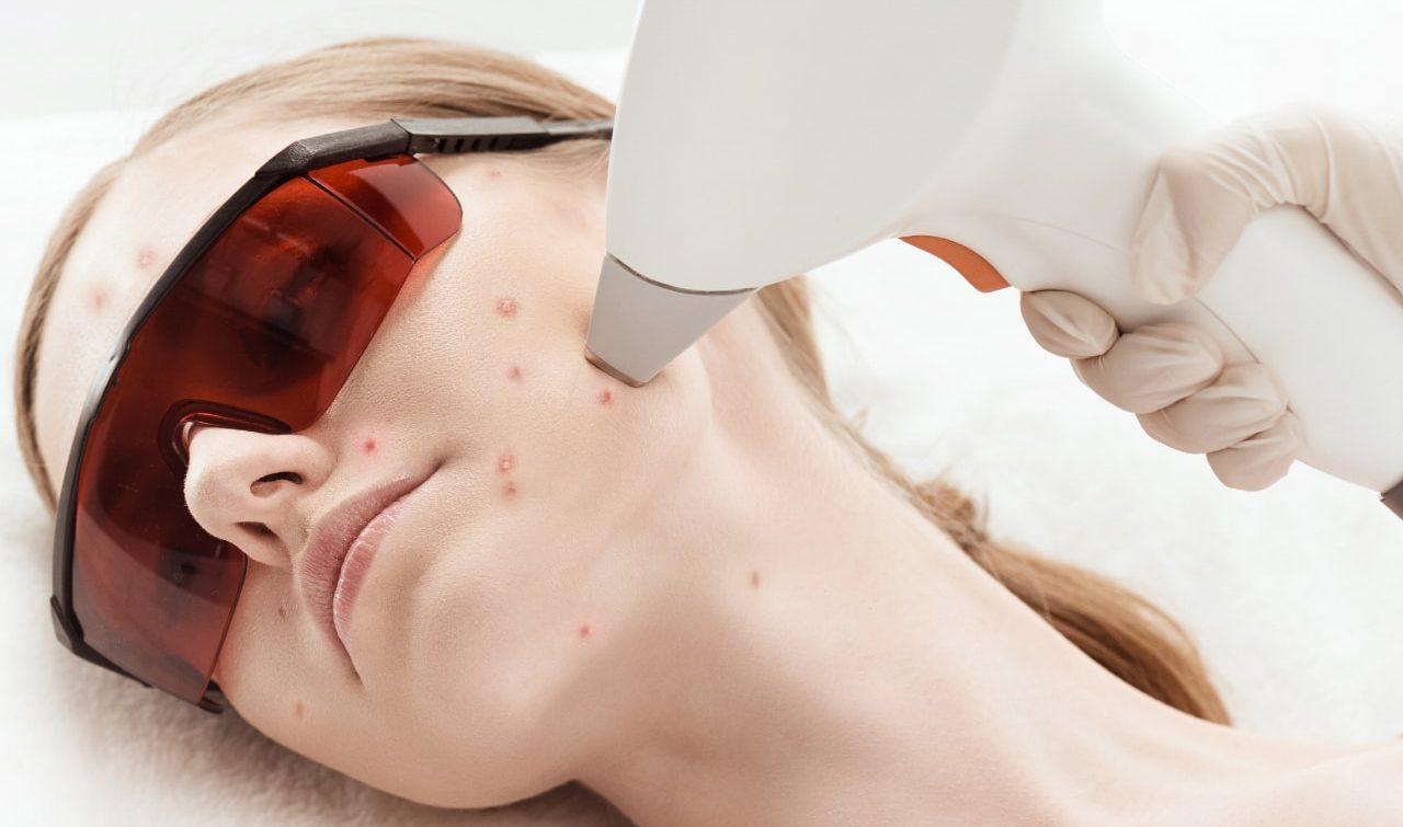 лечение постакне при помощи лазера